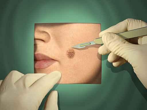 Virus Infektion Gesichtshaut Behandlung